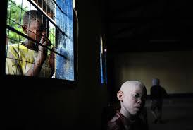 albinos17