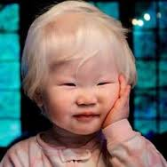 albinos18